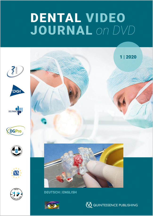 (DGZMK): Dental Video Journal 1/2020
