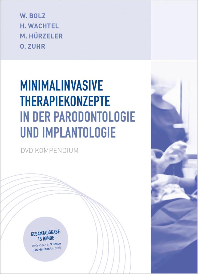 Bolz: Minimalinvasive Therapiekonzepte in der Parodontologie und Implantologie