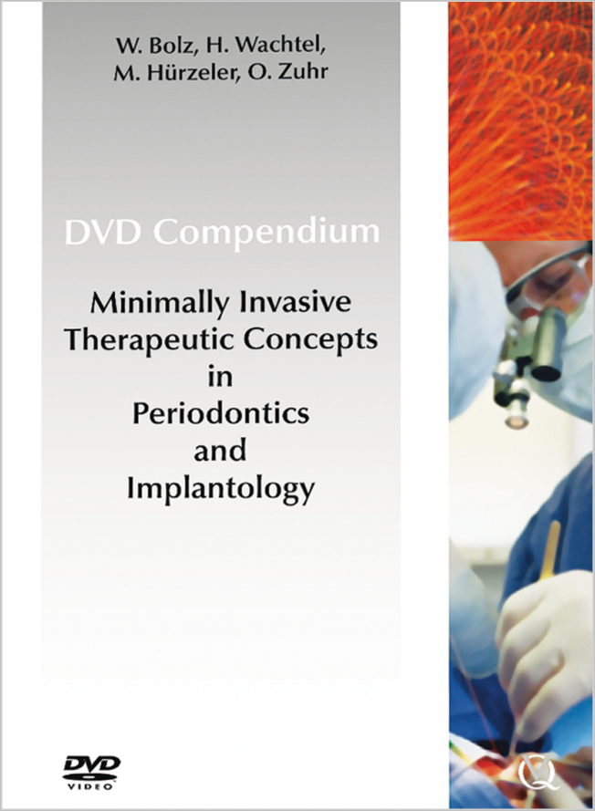Bolz: Minimally Invasive Treatment Concepts in Periodontics and Implant Dentistry