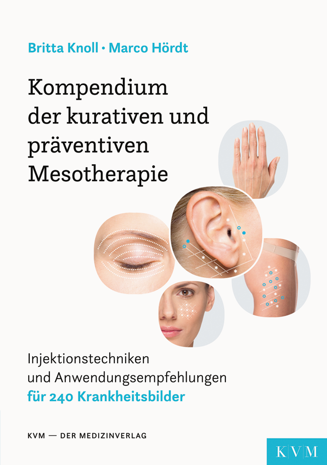 Knoll: Kompendium der kurativen und präventiven Mesotherapie