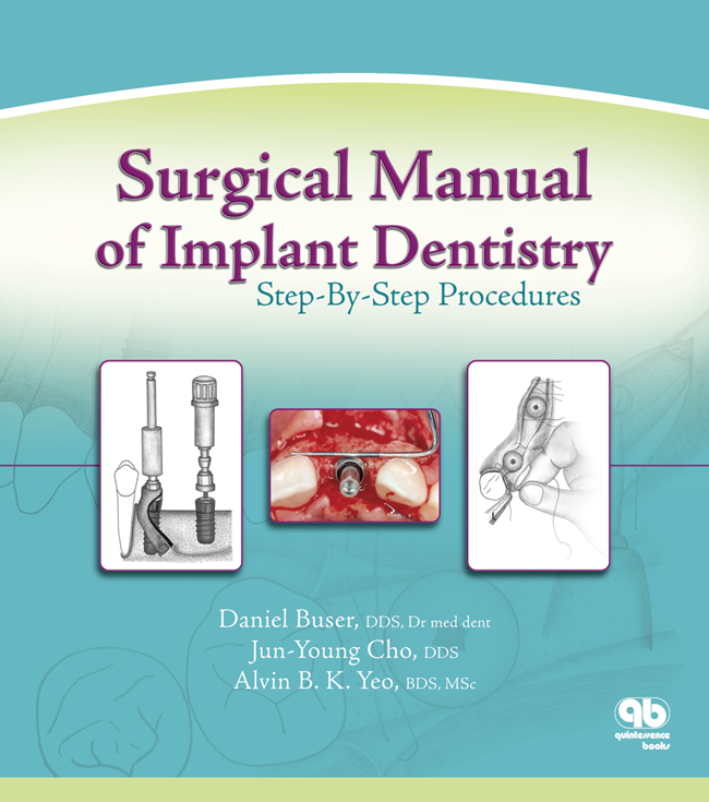 Buser: Surgical Manual of Implant Dentistry